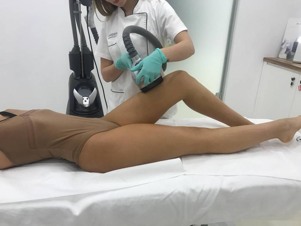 Vela Shape - celulita Dasdem 1