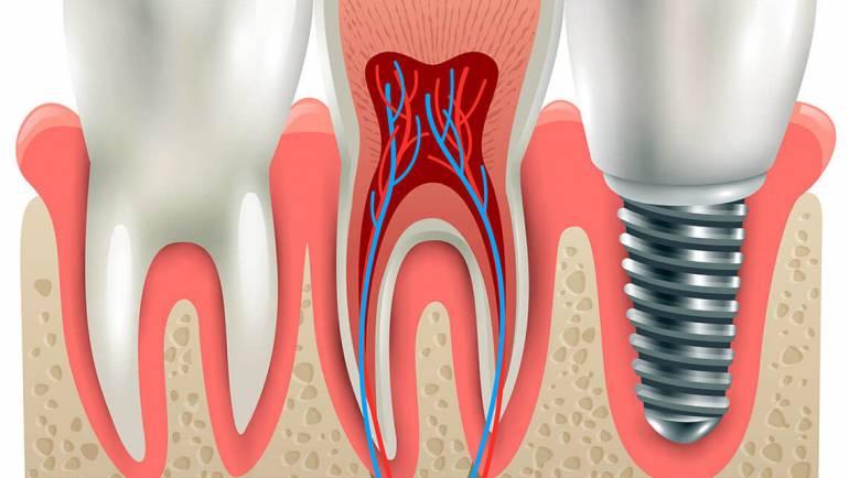 Implant dentar vs. Proteza