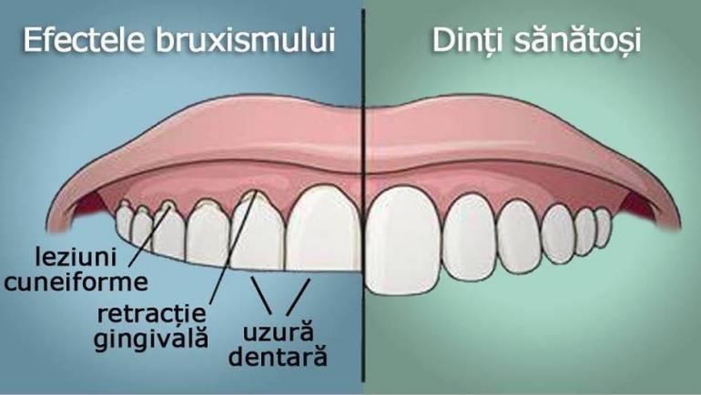 Bruxismul sau scrâșnitul dinților