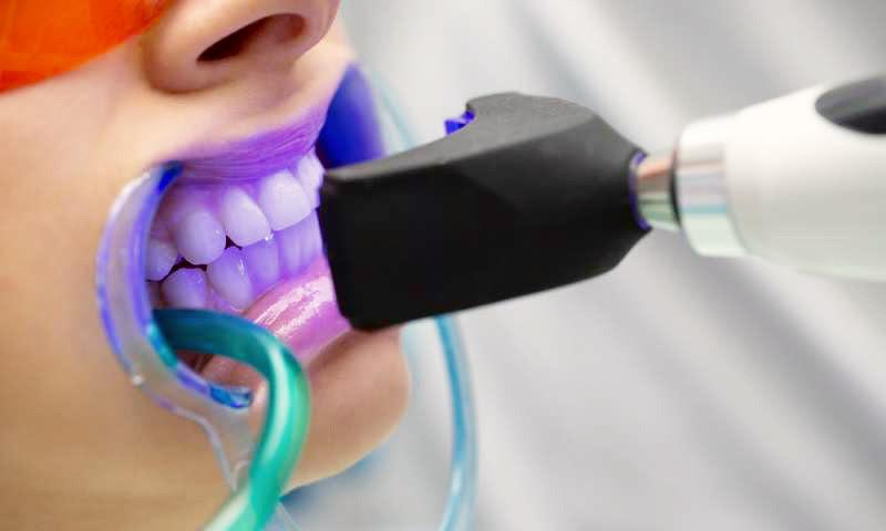 Albirea dentară: acasă sau la cabinet?