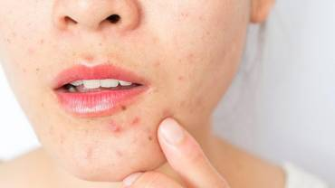7 sfaturi pentru tenul acneic !