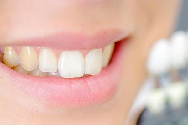 Ce pătează dinții și ce soluții există?
