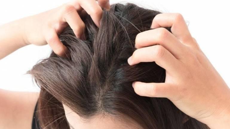 Ce este dermatita seboreică și cum se tratează ?